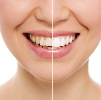 Comparison of teeth whitening before and after