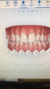 A capture of the computer technology used by your Souderton dentist in properly prescribing Invisalign