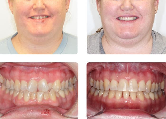Actual Invisalign case by Dr. Silvestre is a board-certified orthodontist specialist in Souderton, PA,