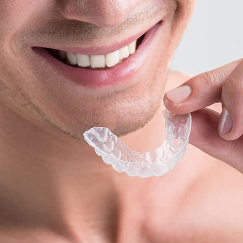 Male patient putting on an Invisalign aligners