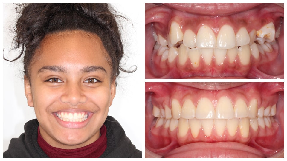 Actual braces patient at Orthodontic specialists Indian Valley