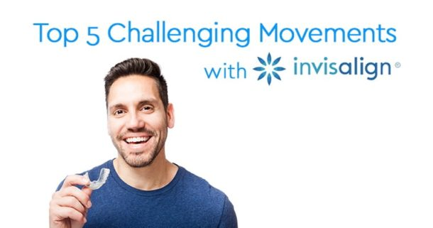 Top 5 challenging movements with Invisalign