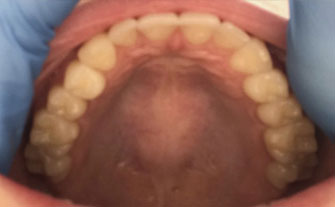 upper arch of mouth